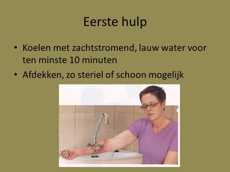 Eerste hulp Koelen met zachtstromend, lauw water voor ten minste 10 minuten Afdekken, zo steriel of schoon mogelijk