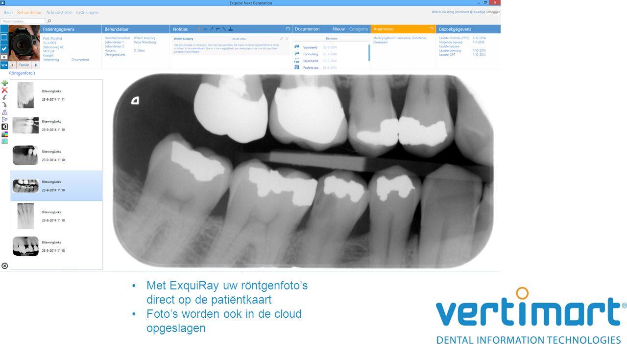 Met ExquiRay uw röntgenfoto's direct op de patiëntkaart Foto's worden ook in de cloud opgeslagen
