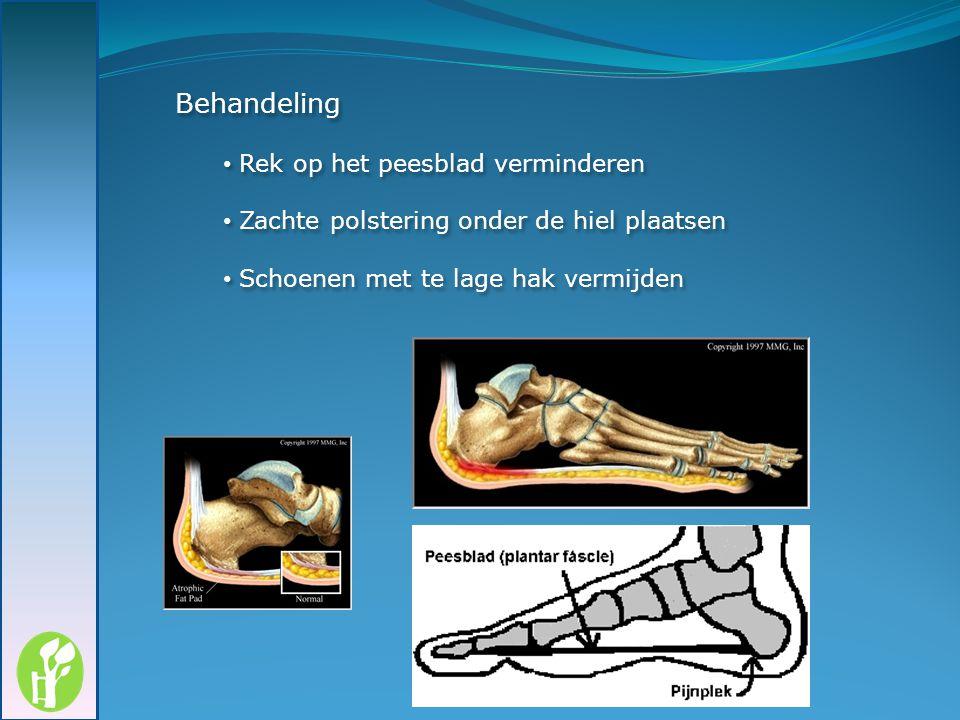 Behandeling Rek op het peesblad verminderen Zachte polstering onder de hiel plaatsen Schoenen met te lage hak vermijden Behandeling Rek op het peesbla
