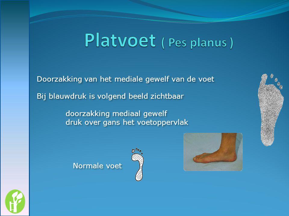 Doorzakking van het mediale gewelf van de voet Bij blauwdruk is volgend beeld zichtbaar doorzakking mediaal gewelf druk over gans het voetoppervlak Do