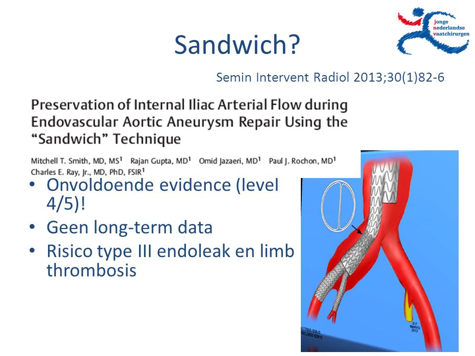 Sandwich? Onvoldoende evidence (level 4/5)! Geen long-term data Risico type III endoleak en limb thrombosis Semin Intervent Radiol 2013;30(1)82-6