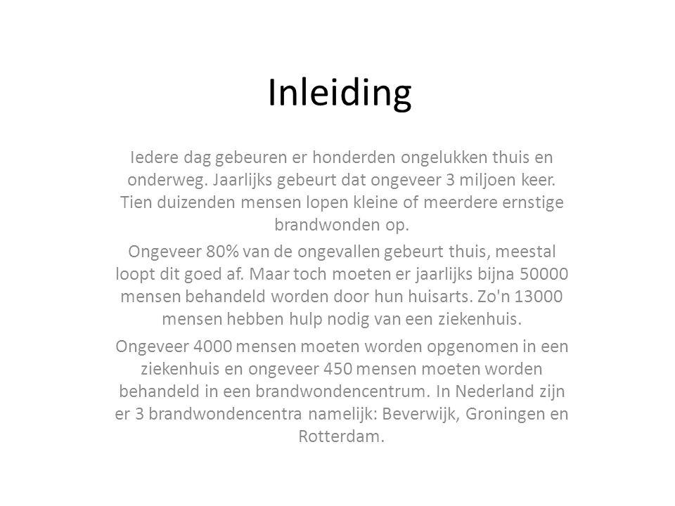 Brandwonden AnitaBuurs.nl