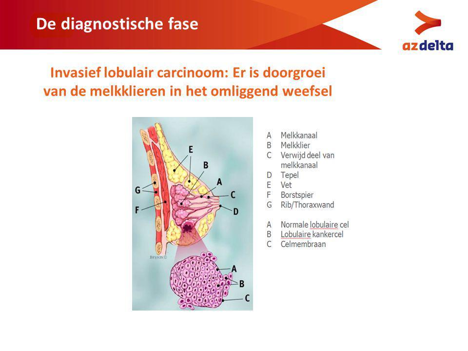 De diagnostische fase Invasief lobulair carcinoom: Er is doorgroei van de melkklieren in het omliggend weefsel