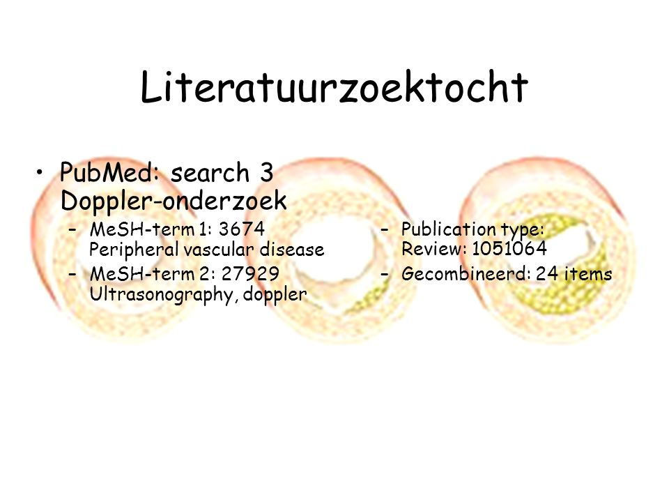 Literatuurzoektocht PubMed: search 3 Doppler-onderzoek –MeSH-term 1: 3674 Peripheral vascular disease –MeSH-term 2: 27929 Ultrasonography, doppler –Publication type: Review: 1051064 –Gecombineerd: 24 items