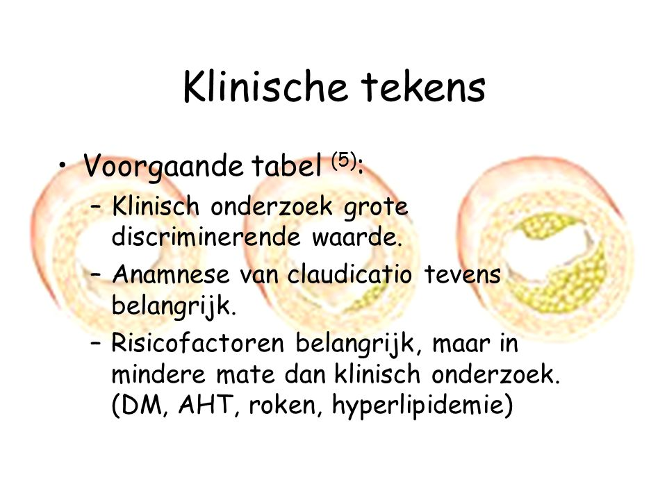 Klinische tekens Voorgaande tabel (5) : –Klinisch onderzoek grote discriminerende waarde.