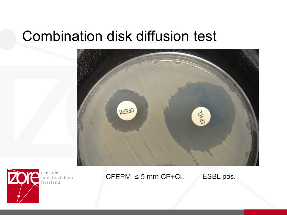 Combination disk diffusion test CFEPM ≤ 5 mm CP+CL ESBL pos.