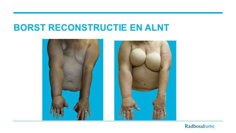 BORST RECONSTRUCTIE EN ALNT