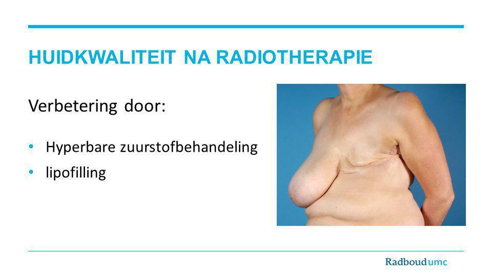 HUIDKWALITEIT NA RADIOTHERAPIE Verbetering door: Hyperbare zuurstofbehandeling lipofilling