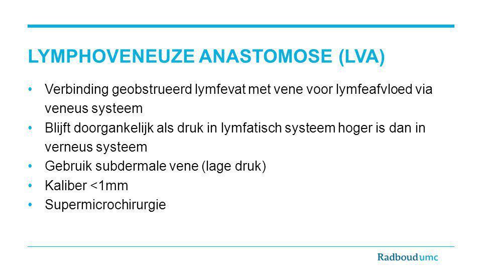 LYMPHOVENEUZE ANASTOMOSE (LVA) Verbinding geobstrueerd lymfevat met vene voor lymfeafvloed via veneus systeem Blijft doorgankelijk als druk in lymfati