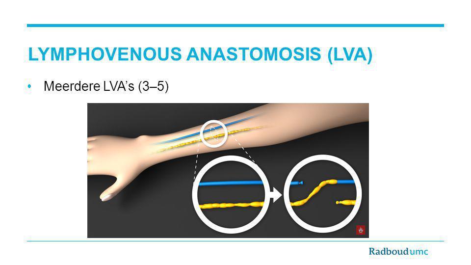 Meerdere LVA's (3–5) LYMPHOVENOUS ANASTOMOSIS (LVA)