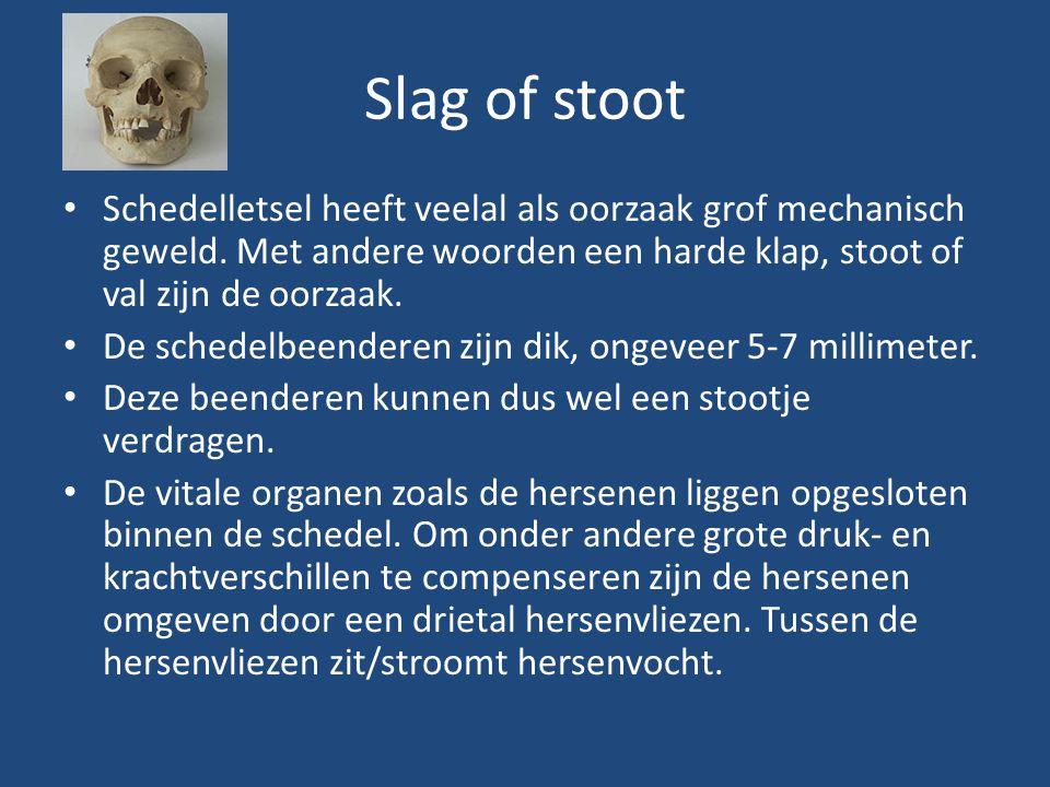Slag of stoot Schedelletsel heeft veelal als oorzaak grof mechanisch geweld. Met andere woorden een harde klap, stoot of val zijn de oorzaak. De sched