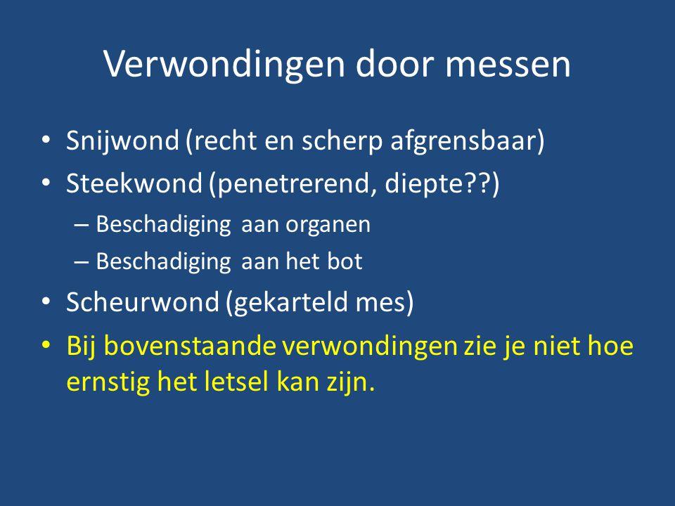 Verspreiding in Nederland Bron: Plantenziektenkundige Dienst (LNV) www.minlnv.nl/eikenprocessierupswww.minlnv.nl/eikenprocessierups 2004 2007