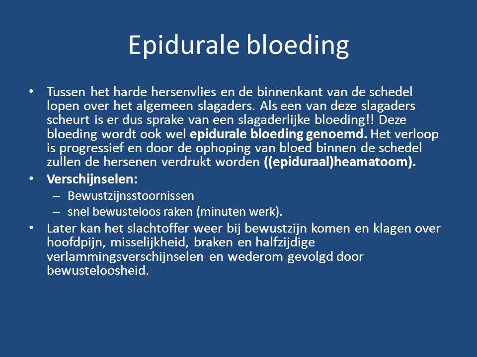 Epidurale bloeding Tussen het harde hersenvlies en de binnenkant van de schedel lopen over het algemeen slagaders. Als een van deze slagaders scheurt