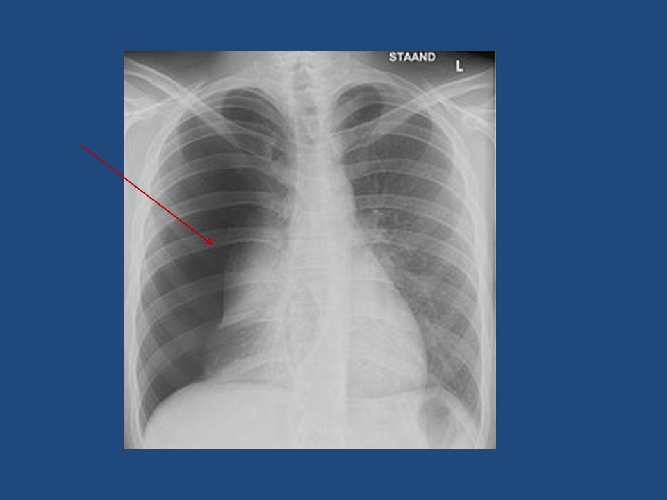 spanningspneumothorax Ventielwerking Lucht vanuit long de holte in Lucht vanuit holte kan niet ontsnappen Hierdoor worden belangrijke structuren (hart, bloedvaten) verplaatst naar de gezonde long of richting buik