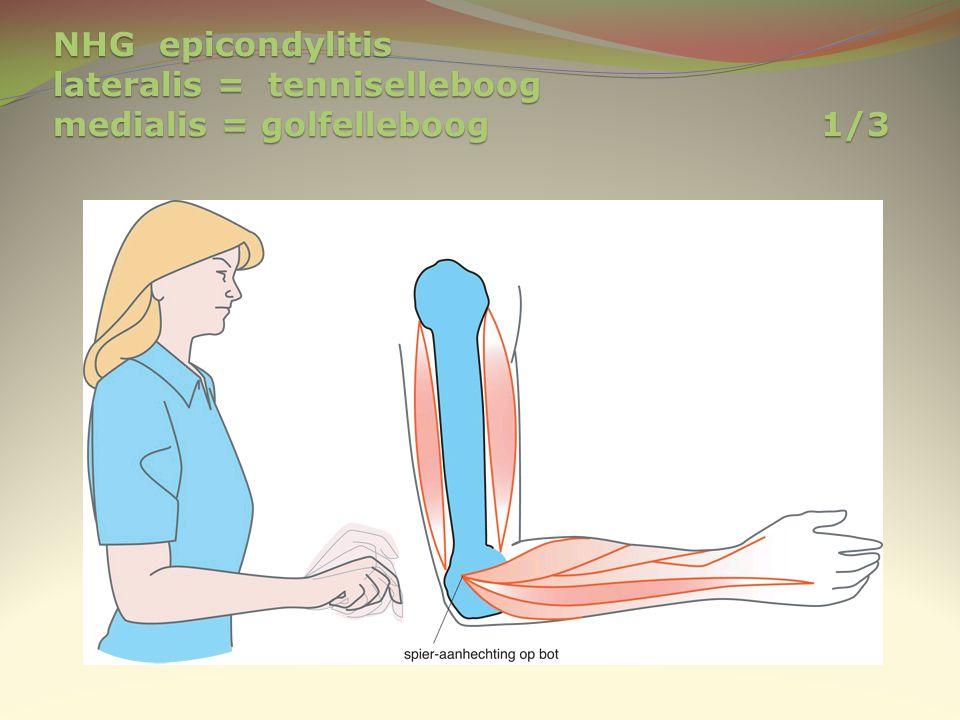 NHG epicondylitis lateralis = tenniselleboog medialis = golfelleboog 1/3