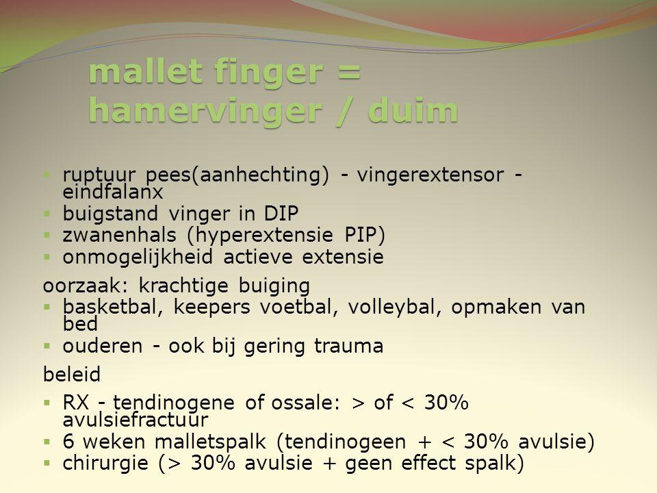 mallet finger = hamervinger / duim  ruptuur pees(aanhechting) - vingerextensor - eindfalanx  buigstand vinger in DIP  zwanenhals (hyperextensie PIP