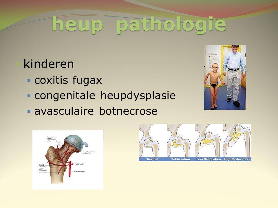 heup pathologie  kinderen  coxitis fugax  congenitale heupdysplasie  avasculaire botnecrose