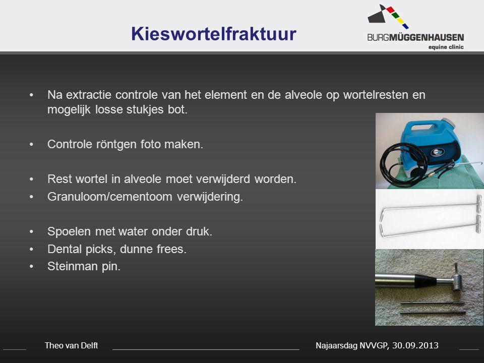 Theo van Delft Najaarsdag NVVGP, 30.09.2013 Kieswortelfraktuur Na extractie controle van het element en de alveole op wortelresten en mogelijk losse s