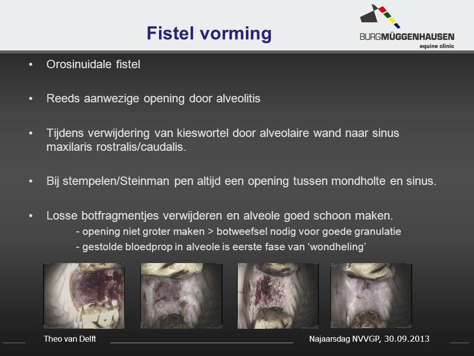 Theo van Delft Najaarsdag NVVGP, 30.09.2013 Fistel vorming Orosinuidale fistel Reeds aanwezige opening door alveolitis Tijdens verwijdering van kieswo