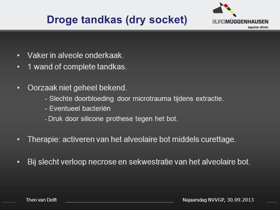 Theo van Delft Najaarsdag NVVGP, 30.09.2013 Droge tandkas (dry socket) Vaker in alveole onderkaak. 1 wand of complete tandkas. Oorzaak niet geheel bek