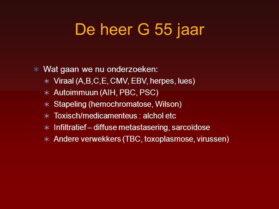 De heer G 55 jaar  Wat gaan we nu onderzoeken:  Viraal (A,B,C,E, CMV, EBV, herpes, lues)  Autoimmuun (AIH, PBC, PSC)  Stapeling (hemochromatose, W