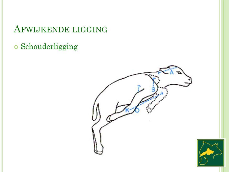 A FWIJKENDE LIGGING Schouderligging