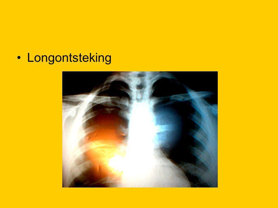 Longontsteking
