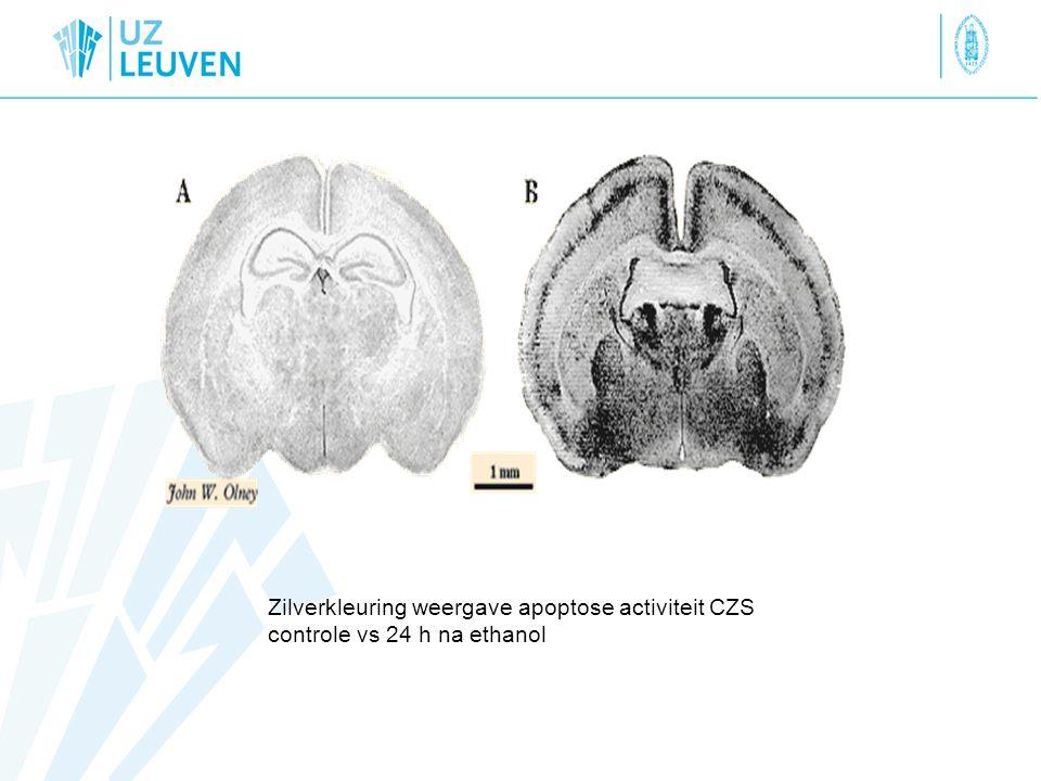 Zilverkleuring weergave apoptose activiteit CZS controle vs 24 h na ethanol