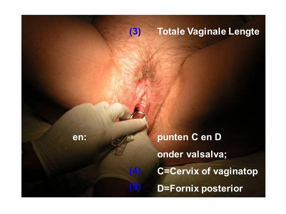 Totale Vaginale Lengte punten C en D onder valsalva; C=Cervix of vaginatop D=Fornix posterior en: (3) (4) (5)