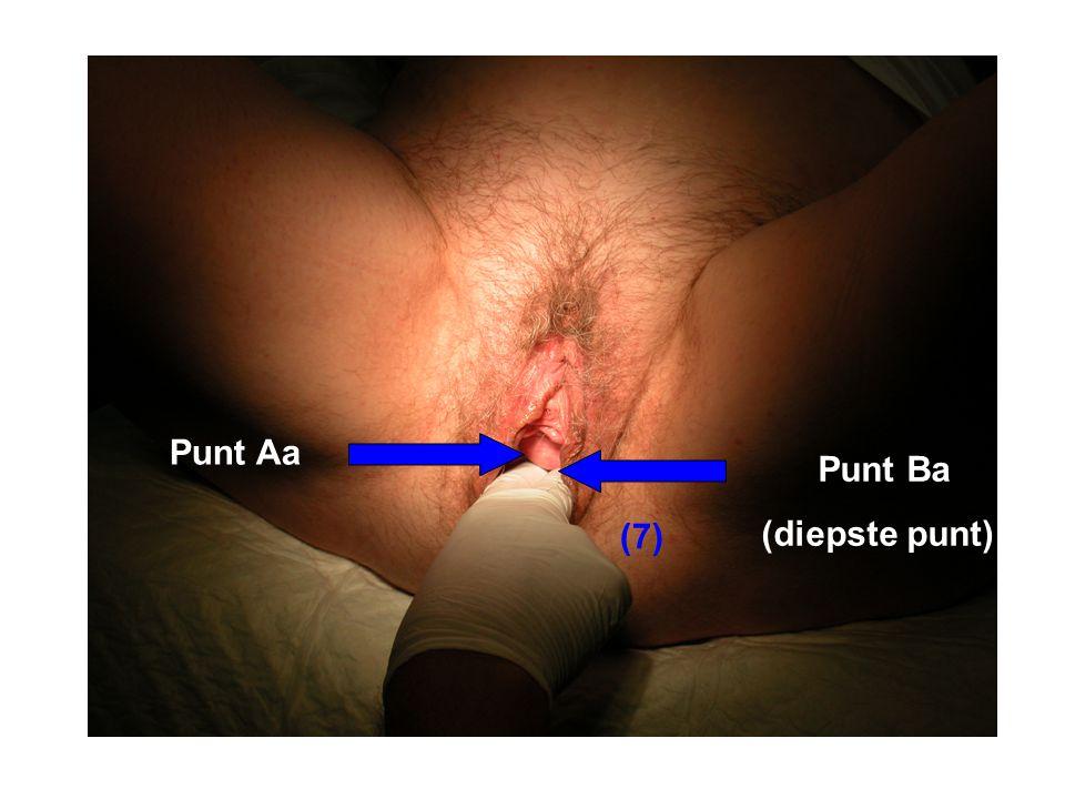 Punt Aa Punt Ba (diepste punt) (7)