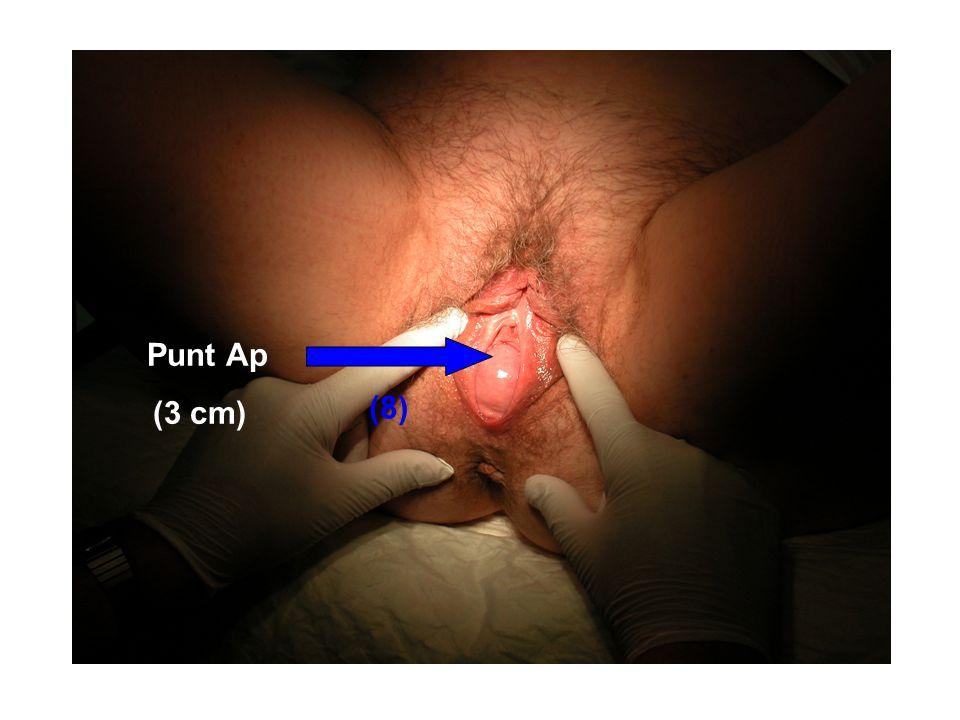 Punt Ap (3 cm) (8)