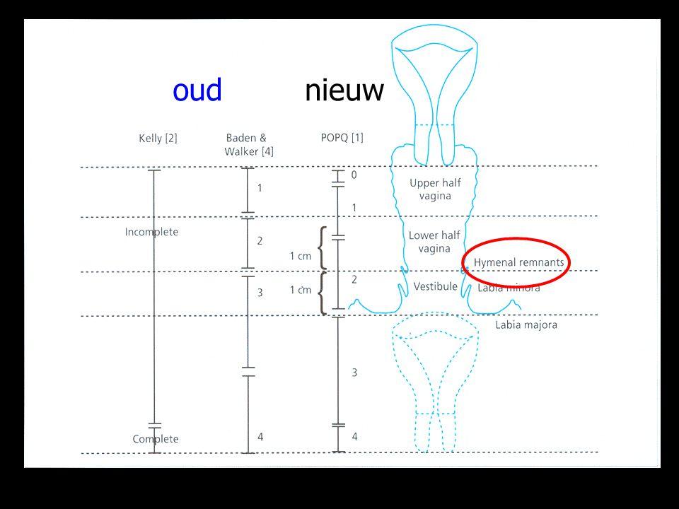 Punt Aa (3 cm) (6)