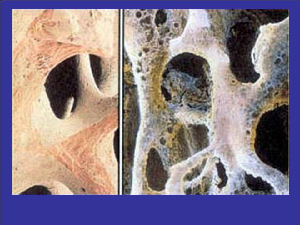 Waar ben ik ? : Home > Traumatologie > Aandoeningen > OsteoporoseHomeTraumatologie AandoeningenOsteoporose Inleiding Wat is osteoporose (ofwel botontk
