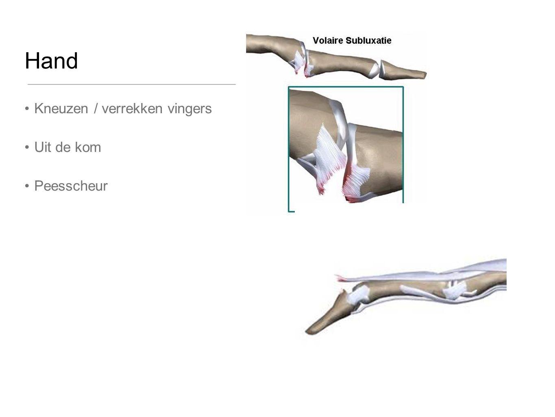 Hand Kneuzen / verrekken vingers Uit de kom Peesscheur