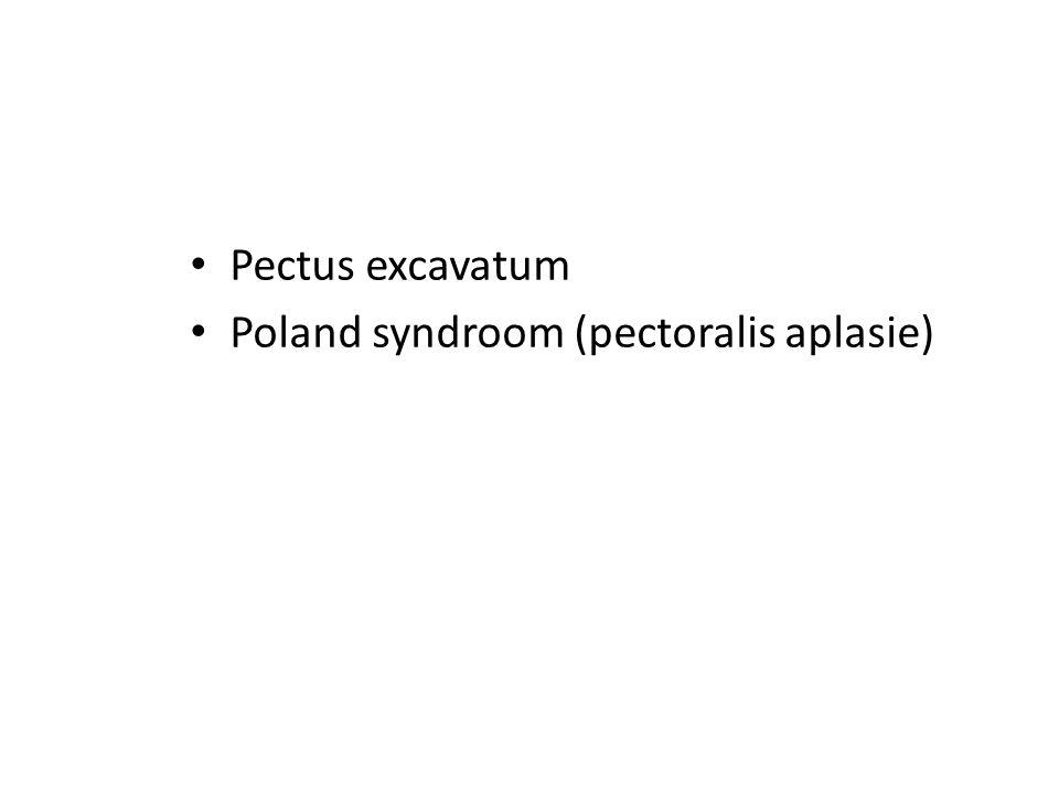 Pectus excavatum Poland syndroom (pectoralis aplasie)